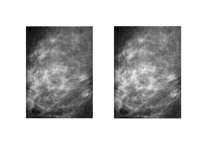 A Wavelet-Based Mammographic Image Denoising and Enhancement with Homomorphic Filtering