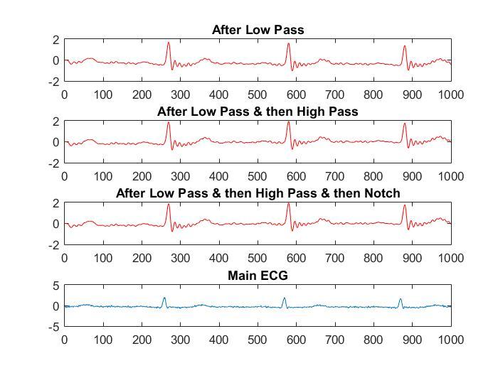 Electrocardiogram, Chebyshev II IIR Digital filter, Real time Application