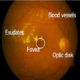 Early Detection of Diabetic Retinopathy Edema using FCM