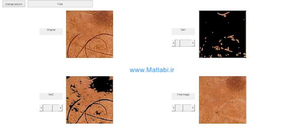 Skin Hair Removal in Dermoscopic Images Using Soft Color Morphology