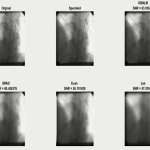 Nonlocal Means-Based Speckle Filtering for Ultrasound Images