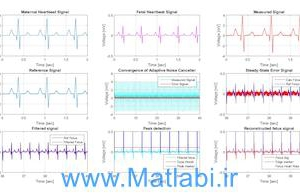A Review of Fetal ECG Signal Processing; Issues and Promising Directions 2) Comparative analysis of fetal electrocardiogram (ECG) extraction techniques using system simulation