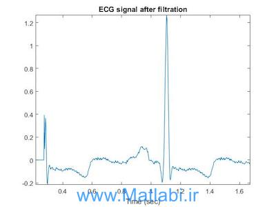 SUPPRESSION OF POWERLINE INTERFERENCE IN ECG USING ADAPTIVE DIGITAL FILTER