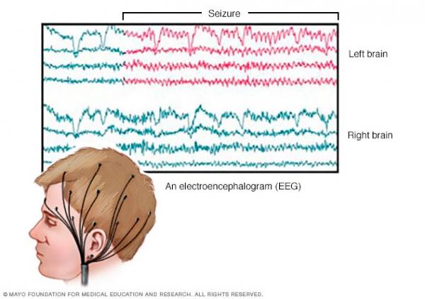 پردازش سيگنال هاي الكتروآنسفالوگرافي به منظور تشخيص انواع تشنجات صرعي پتي مال وگراندمال با استفاده از شبكه هاي عصبي مصنوعي