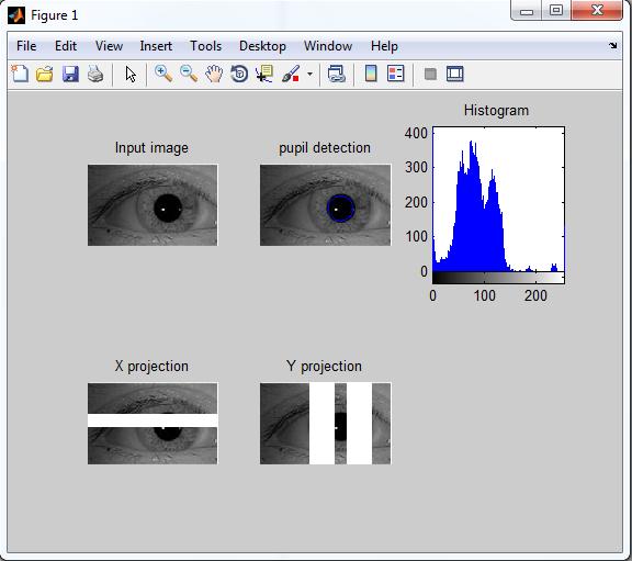 تحلیل بی نظمی در تصاویر بافت عنبیه برای استخراج نواحی غنی از اطلاعات